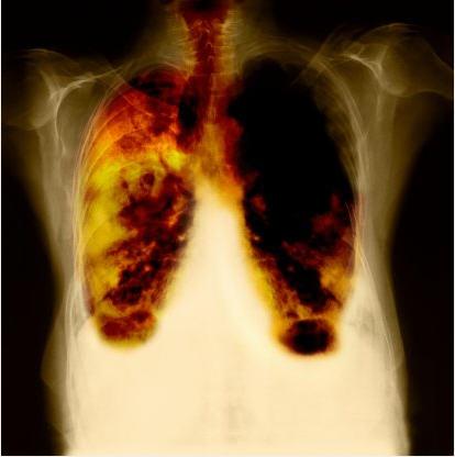 Лечение онкологии в кубе и цена